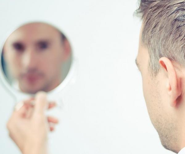 Saç Ektiren Ünlüler